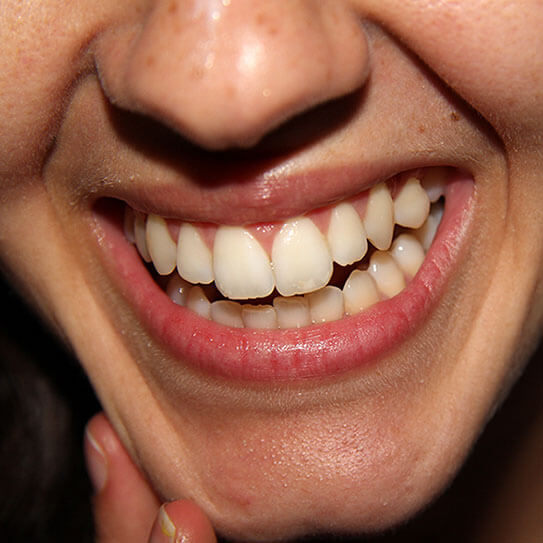 What Are Those White Spots On My Teeth My Dental Practice Website